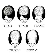 Ludwig Scale. Female Pattern Hair Loss. Alopecia.